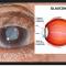 """GLAUCOMA: allarme dei MEDICI OCULISTI """"Prevenzione è fondamentale""""."""